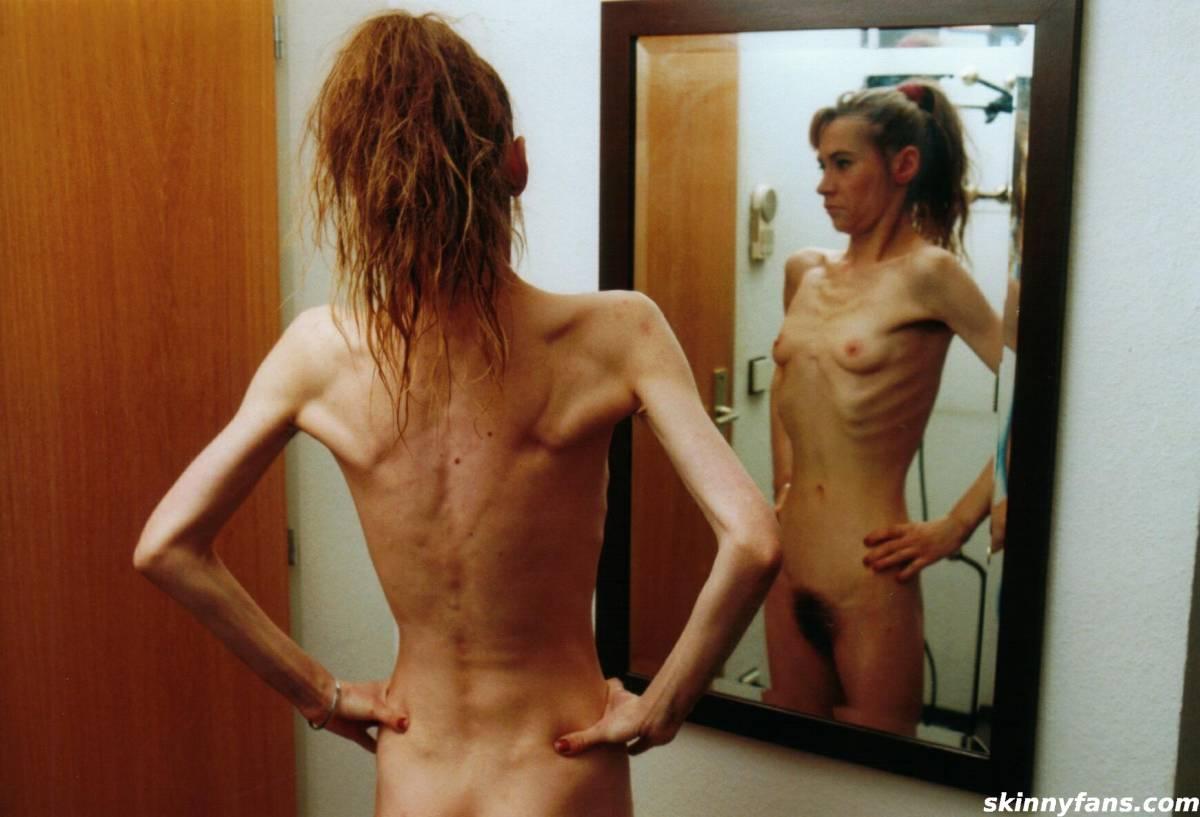 anorexic Skinny girls bony