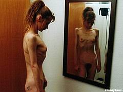 anorexicmodel01.jpg