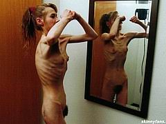 anorexicmodel03.jpg