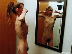 anorexicmodel04.jpg