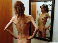 anorexicmodel09.jpg