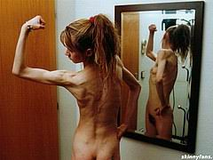 anorexicmodel11.jpg